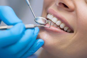 emergency dentist Columbus Ohio