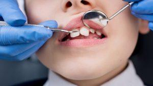 Emergency Dental Pros in Louisville, Kentucky